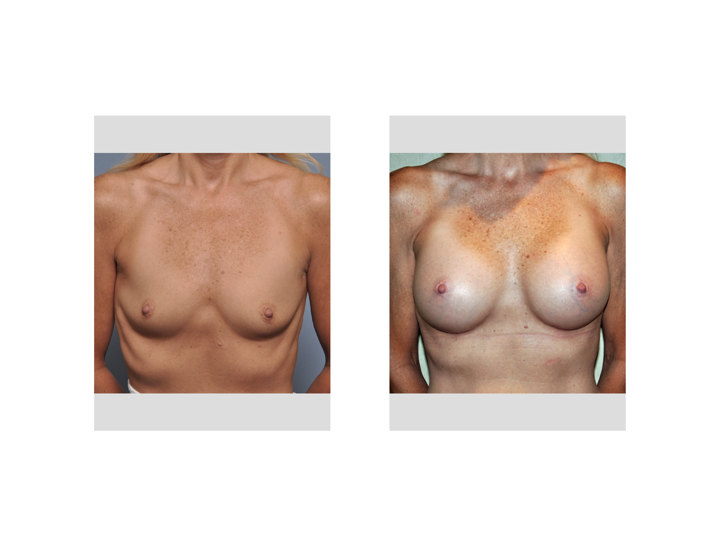 Parasternal Fat Grafting In Breast Augmentation In The Widely