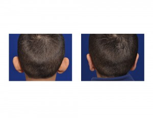 Child Otoplasty result back view