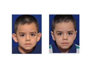 Child Otoplasty result front view