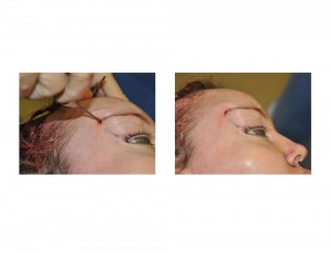 Direct Tail of the Brow Pexy technique 2 Dr Barry Eppley Indianapolis
