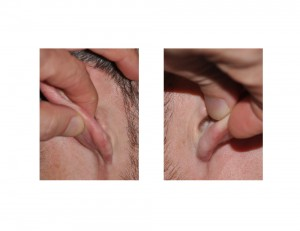 Helical Rim Earlobe Reduction scars Dr Barry Eppley Indianapolis