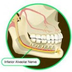 Inferior Alveolar nerve in Jaw line Narrowing Dr Barry Eppley Indianapolis