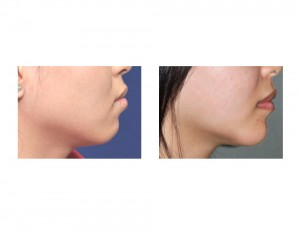 Jawline Reshaping result side view Dr Barry Eppley Indianapolis