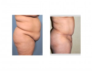 Large Tuck results side view Dr Barry Eppley Indianapolis