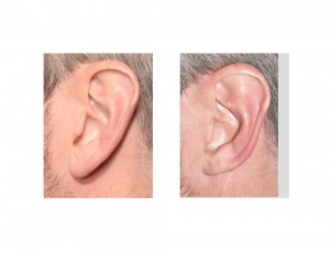 Left Helical Rim Earlobe Reduction result Dr Barry Eppley Indianapolis