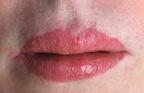 Lip Advancement Asymmetries Dr Barry Eppley Indianapolis