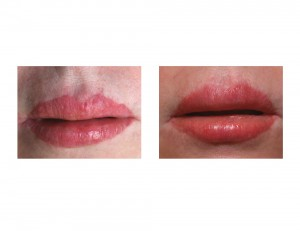 Lip Advancement Revisions front view Dr Barry Eppley Indianapolis