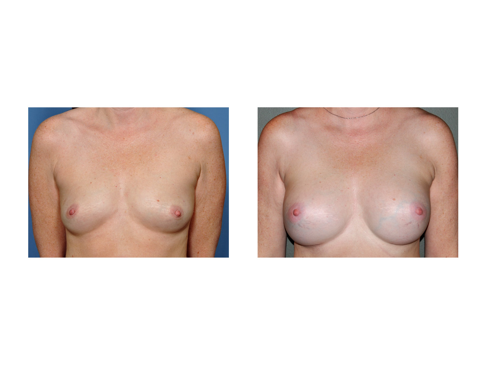 Breast surgery with local anesthesia