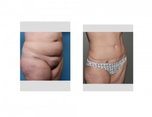 Long Term Tummy Tuck result oblique view Dr Barry Eppley Indianapolis