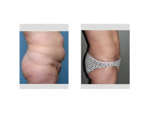Long Term Tummy Tuck result side view Dr Barry Eppley Indianapolis