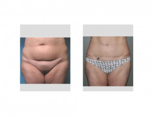 Long term Tummy Tuck result front view Dr Barry Eppley Indianapolis