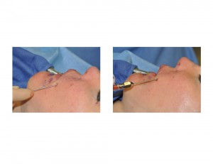 Microliposuction and Fat Grafting for Injectable Filler Nodules Dr Barry Eppley Indianapolis