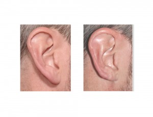 Right Helical Rim Earlobe Reduction result Dr Barry Eppley Indianapolis