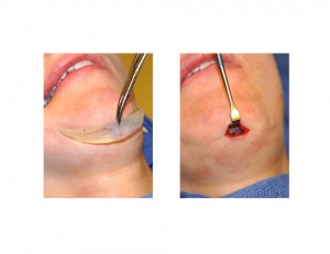 Small Incision for Chin Implant Dr Barry Eppley Indianapolis