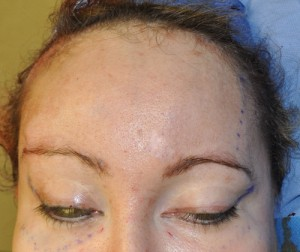 Tail of the Brow Lift intraop result Dr Barry Eppley Indianapolis