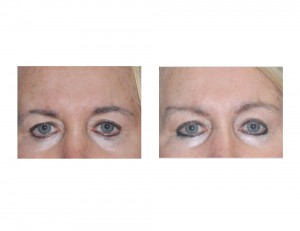 Temporal Browlift results front view Dr Barry Eppley Indianapolis