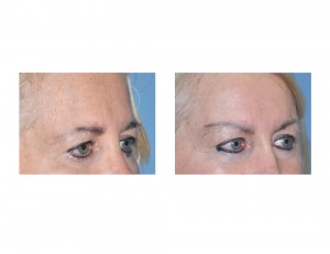 Temporal Browlift results oblique view Dr Barry Eppley Indianapolis