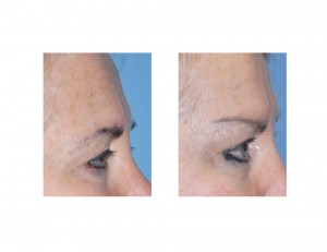 Temporal Browlift results side view Dr Barry Eppley Indianapolis