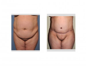 Tummy Tuck results front view Dr Barry Eppley Indianapolis