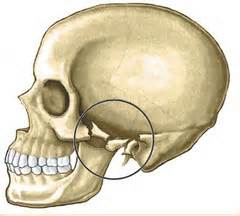 comminuted zygomatic arch fracture dr barry eppley indianapolis