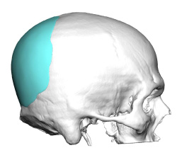 custom occipital implant design side view jm