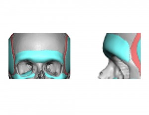 Custom Brow Bone Implant Design Dr Barry Eppley Indianapolis