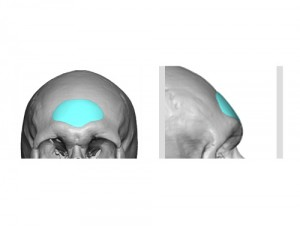 Custom Central Forehead Implant Design Dr Barry Eppley Indianapolis