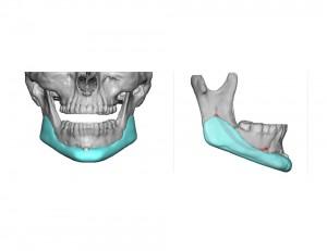 Custom Jawline Implant Dr Barry Eppley Indianapolis