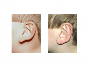 Otoplasty left ear side view result Dr Barry Eppley Indianapolis