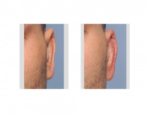 Reversal Otoplasty Left Ear results Dr Barry Eppley Indianapolis