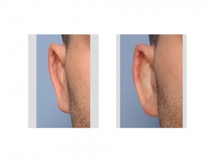 Reversal Otoplasty Right Ear results Dr Barry Eppley Indianaplis