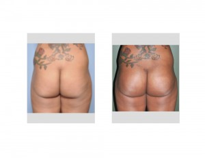 Subfascial Buttock Implants result back view