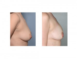 Breast Fat Injectiions result side view Dr Barry Eppley Indianapolis