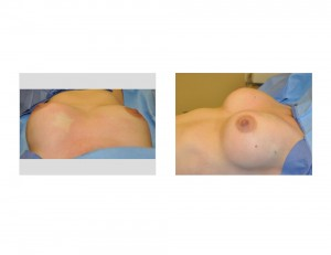 Breast Fat Injections intraop result Dr Barry Eppley Indianapolis