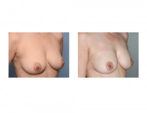 Breast Fat Injections result oblique view Dr Barry Eppley Indianapolis