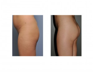 Buttock Augmentation results left side view. DR Barry Eppley Indianapolis