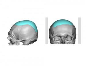 Custom Skull Cap Implant design Dr Barry Eppley
