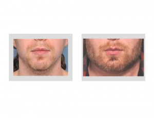 Extreme Jawline Augmentation result front view Dr Barry Eppley Indianap[olis