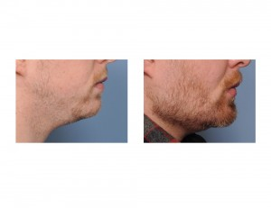 Extreme Jawline Augmentation result side view Dr Barry Eppley Indianapolis