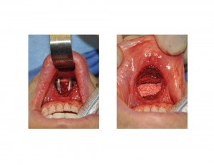 HYdroxyapatite Onlay Block in Large Sliding Genioplasty Dr Barry Eppley Indianapolis