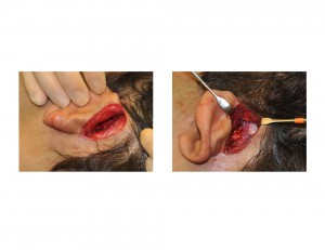 Head Widening (Temporal) Implants Surgical Technique Incision and Pocket Dissection Dr Barry Eppley Indianapolis