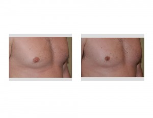 Indianapolis Male Nipple Reduction Dr Barry Eppley