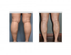 Knee and Calf Liposuction result back view