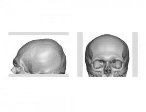 Lumpy Misshapen Skull Dr Barry Eppley Indianapolis