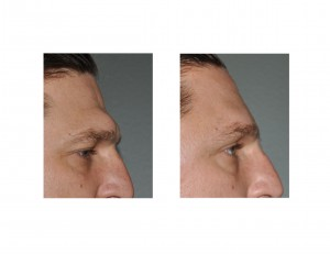 Male Brow Bone Reduction Dr Barry Eppley Indianapolis