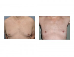 Male GYnecomastia Liposuction Reduction result front view