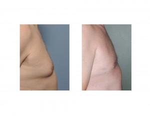 Male Gynecomastia Liposuction Reduction side view 2