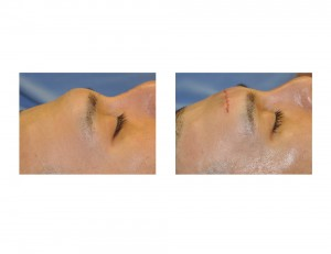 Mid-Forehead Brow Bone Rerduction result intraop Dr Barry Eppley Indianapolis