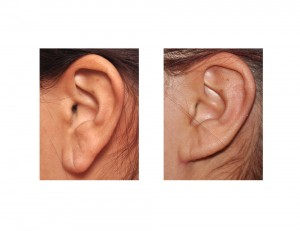 Otoplasty with Earlobe Reduction result left side