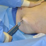 Power-Assisted Liposuction Indianapolis Dr Barry Eppley
